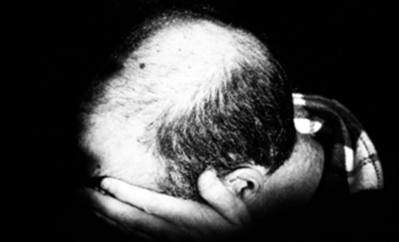 Hair Loss Specialist NYC